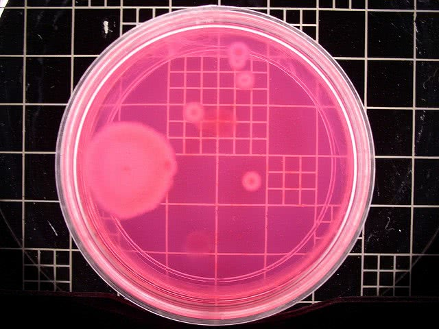 Microbiology is one of the careers biology majors can pursue.
